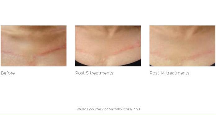 Perth Skin Cancer Clinic Auspoint Skin Cancer Amp Health